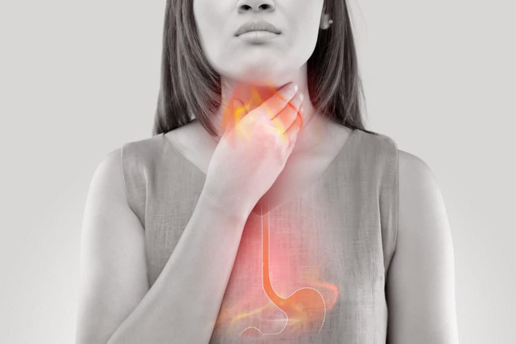 Mujer acidez ardor estomago reflujo gastroesofagico